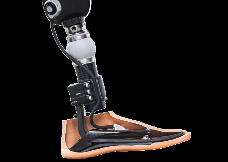 ossur-prosthetic