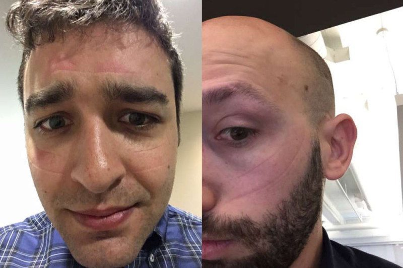 Are You Suffering From Oculus Face or Rift Rash?