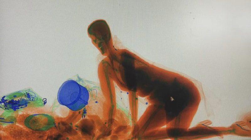 woman x-ray